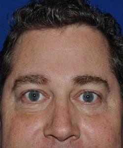 After-lower blepharoplasty