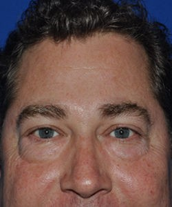 Before-lower blepharoplasty
