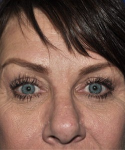 After-upper eyelid tuck