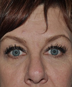 Before-upper eyelid tuck