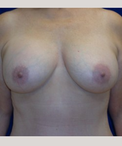 After-34B to 36D