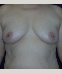 Before-34B to 36D