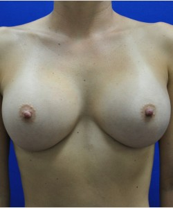 After-34B to 34D