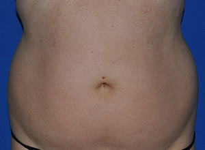 Before-front-abdomen