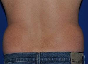 Before-backside